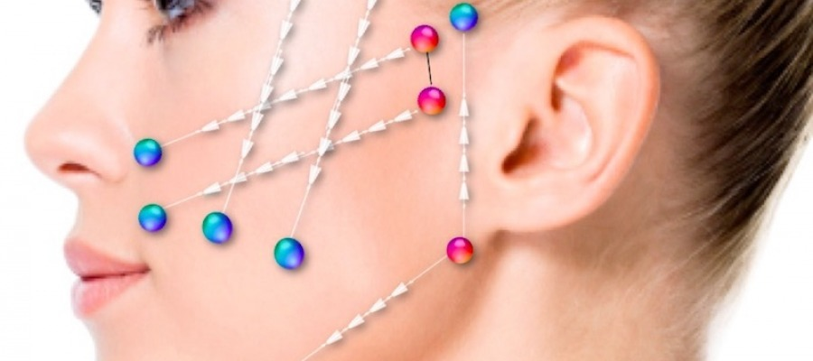 Cosmetic thread lift