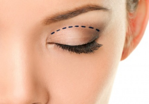 REDISCOVER THE BEAUTY OF YOUR EYES WITH BLEPHAROPLASTY