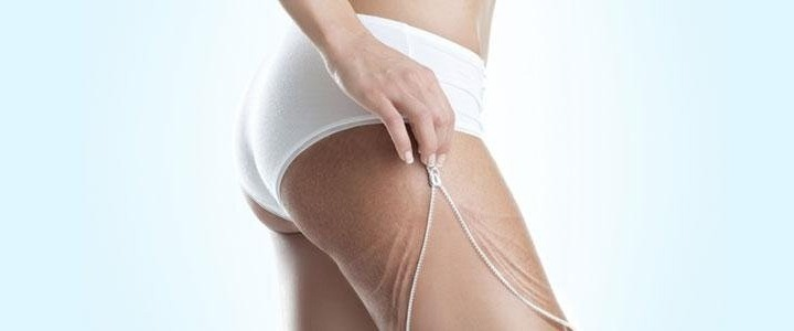 Advanced beauty technologies: cellulite has lost immortality