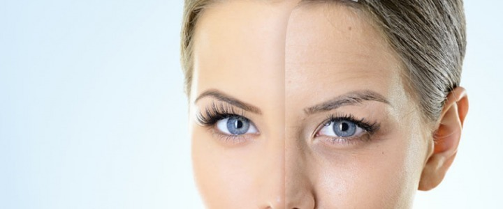 Fillers for facial rejuvenation