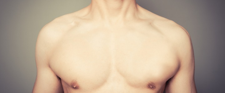 GYNECOMASTIA: CAUSES AND SOLUTIONS