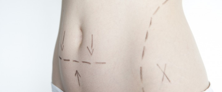 MINI-ABDOMINOPLASTY: RESHAPING YOUR BELLY